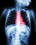 先天心脏病,风湿性心脏病(孩子和红颜色X-射线身体在心脏区域) 库存照片