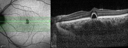 光学凝聚X线体层照相术 库存图片