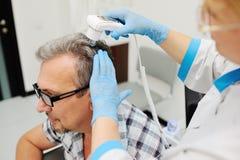 光秃 诊断头发和头皮 免版税库存图片