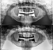 全景牙齿X-射线、固定的牙、银粉封印、牙齿冠和桥梁,螺丝 库存照片
