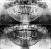 全景牙齿X-射线、固定的牙、银粉封印、牙齿冠和桥梁,被冲击的被填装的根管智齿 免版税库存照片