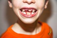 八年的孩子特写镜头与-坚持乳齿,也叫的不疏松他的乳齿的问题的 免版税库存照片