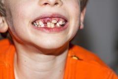 八年的孩子特写镜头与-坚持乳齿,也叫的不疏松他的乳齿的问题的 免版税图库摄影