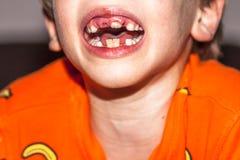 八年的孩子特写镜头与-坚持乳齿,也叫的不疏松他的乳齿的问题的 图库摄影