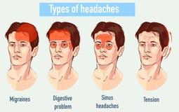 关于头疼4类型的例证在患者另外区域  免版税库存图片