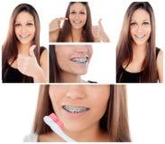 关心您的牙 有托架的女孩 库存照片