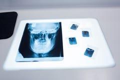 关闭一块人的头骨的X-射线在桌上的 免版税库存图片