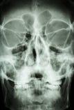 关闭亚洲人的头骨(泰国人) 库存图片