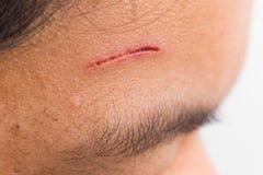关闭在前额的痛苦的创伤从深刻的裁减 库存图片