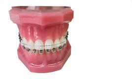 牙齿括号模型 免版税库存照片