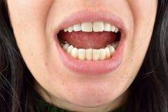 关闭少妇的健康牙 牙齿医疗保健 Hy 免版税库存图片