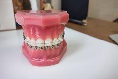 牙齿括号模型 图库摄影