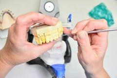 关闭牙清洁保健员 图库摄影