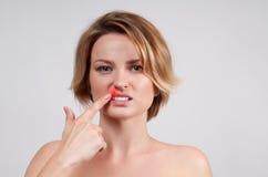 关闭疱疹病毒的影响的女性嘴唇 图库摄影