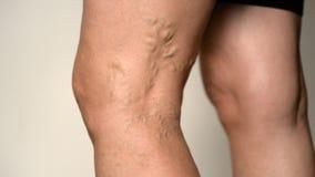 关闭,宏指令:扭转成脉络弯曲在无法认出的资深夫人的膝盖下后面  影视素材