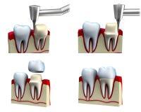 冠牙齿安装过程 免版税库存图片