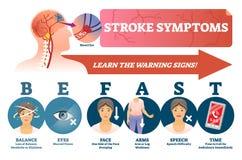 冲程症状导航例证 突然的血块的标志在头的 向量例证