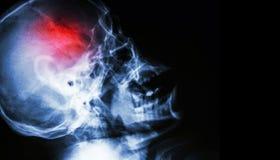 冲程 摄制人的与冲程的头骨侧向视图X-射线  空白的区域在右边 免版税库存照片