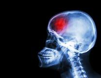 冲程 摄制X-射线头骨和子宫颈脊椎侧向视图和冲程 脑血管故障 空白的区域在左边 免版税库存图片