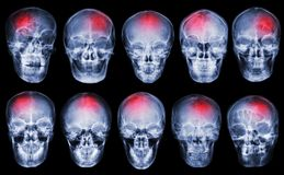 冲程 脑血管故障 套影片X-射线头骨 库存照片