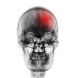冲程& x28;脑血管故障& x29; 摄制人的X-射线头骨有红色区域的 正面图 库存照片