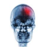冲程& x28;脑血管故障& x29; 摄制人的X-射线头骨有红色区域的 正面图 库存图片