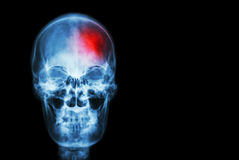冲程(脑血管故障) 摄制人的X-射线头骨有红色区域的(医疗,科学和医疗保健概念和backg 库存图片