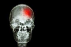 冲程(脑血管故障) 摄制人的X-射线头骨有红色区域的(医疗,科学和医疗保健概念和backg 库存照片