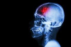 冲程(脑血管故障) 摄制X-射线与冲程的头骨侧面并且删去区域在左边 免版税库存照片