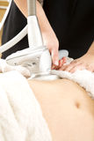 减肥和在诊所的脂肪团治疗 免版税库存照片