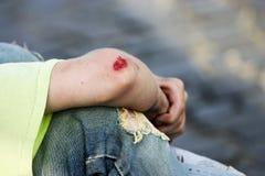 出血手肘 免版税库存图片