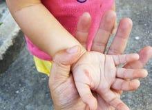 创伤在一个孩子的手上从铁烧伤的在父亲` s手上 免版税库存照片