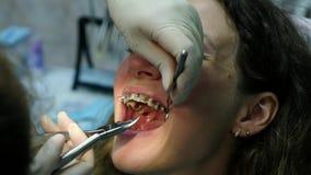 到牙医正牙医生的参观设置在铁括号特写镜头的弧 影视素材