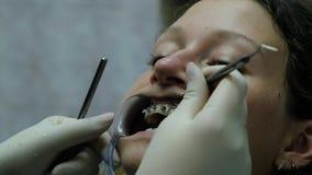 到牙医的托架系统的参观,咬合不良的设施和更正 正牙医生改正 股票视频