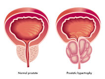 前列腺的肥大 免版税库存照片