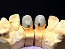 前牙牙插入物 库存照片