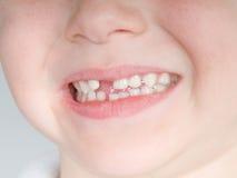 前缺少牙 免版税库存图片