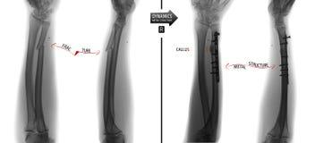 前臂骨头的X-射线 尺骨的破裂与改变位置和金属制品的定象 负 标记 免版税库存照片