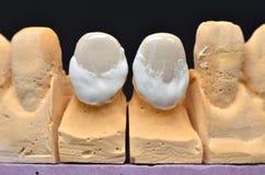 前面牙植入管 免版税库存照片