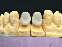 前面瓷牙植入管 库存图片
