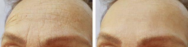 前额在做法前后的妇女皱痕 免版税图库摄影