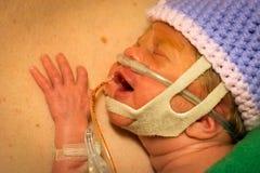 剥皮的早产婴孩新出生的女孩皮肤与爸爸 免版税库存图片