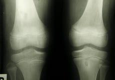 加盖人力膝盖照片光芒x 免版税库存照片