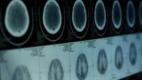移动的顶头宠物cT扫描,头骨脑子X-射线 影视素材