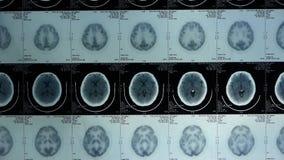 移动的头骨脑子X-射线,顶头宠物cT扫描 股票视频
