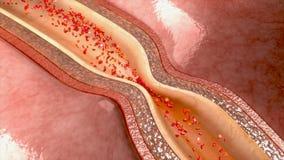 动脉痉孪 库存例证