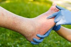 动脉硬化的老脚 免版税库存照片
