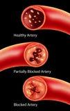 动脉粥样硬化解剖学在动脉的 图库摄影