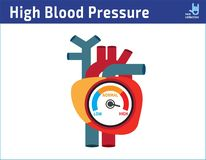 动脉高血压检查概念 传染媒介例证平的象动画片设计 库存例证