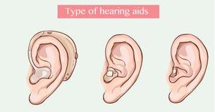 助听器的类型 库存图片